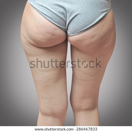 Cellulite at woman buttocks.Gray background