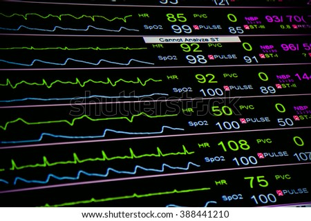 Center of  vital signs monitor at  ICU  in hospital - stock photo