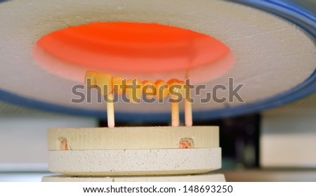 ceramic compound crowns in furnace inside of laboratory - stock photo
