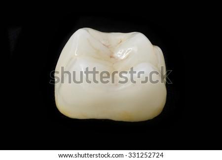 ceramic crown in dental laboratory - stock photo