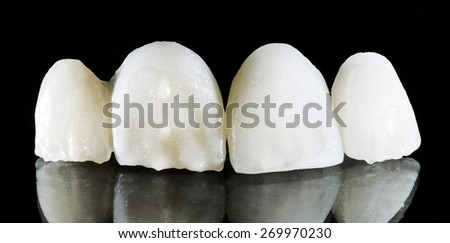 Ceramic crown on black background - stock photo