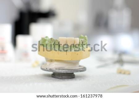 Ceramic crown on gypsum model in dental laboratory - stock photo