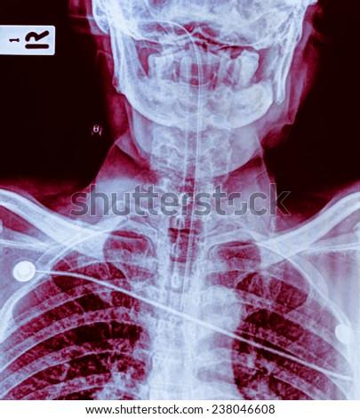 Cervical vertebra x light location photos - stock photo