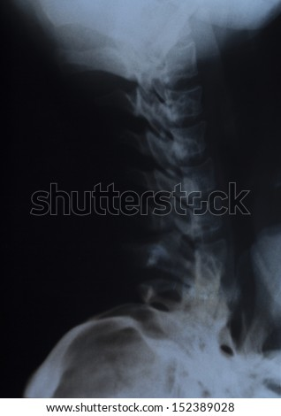 cervical x-ray - stock photo