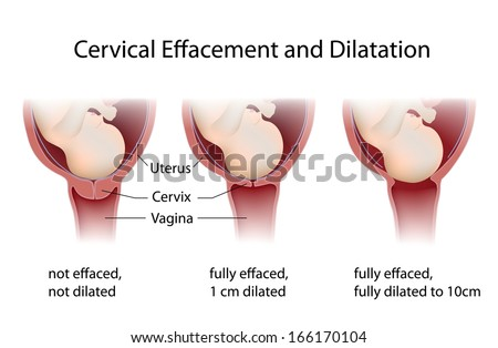 Cervix thinning and widening during labor - stock photo
