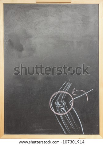 Chalk drawing human joint sketched on chalkboard - stock photo