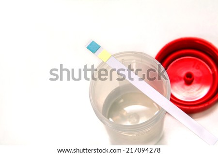 Check-up Medical  urine test strips on white background - stock photo