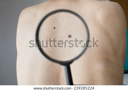 checking melanoma on a back of a man with magnifying glass - stock photo