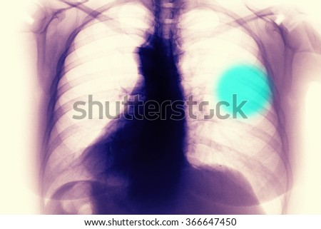 Chest and breast Xray photo - stock photo