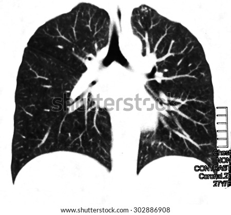 Chest image. Radiology image for medical treatment. - stock photo