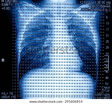 Chest MRI. Radiology image for medical treatment. - stock photo