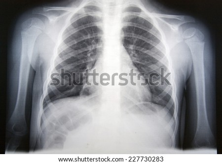 Chest radiography with attached pneumonia