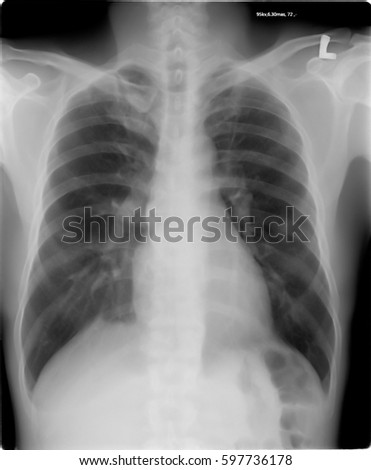 Chest tomography,X-ray of a human
