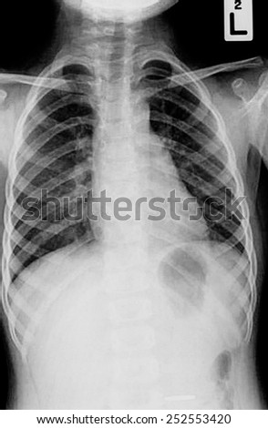 Chest x-ray - stock photo