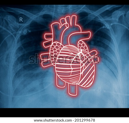 Chest x-ray and heart. The idea for the medical concept  - stock photo