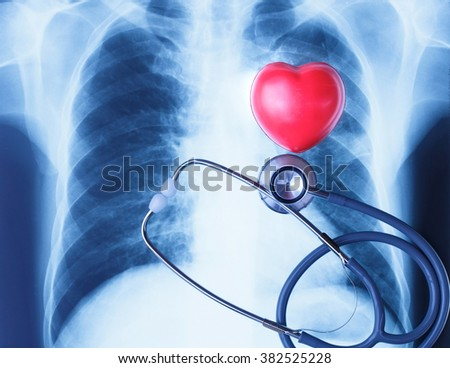 Chest x-ray and red point injury in blue tone style.Medical treatment concept. - stock photo