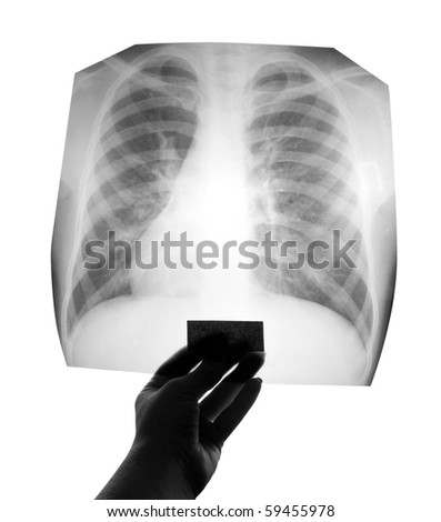 Chest X-ray image in hand - stock photo