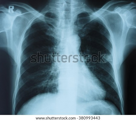 Chest x-ray image.Medical concept.