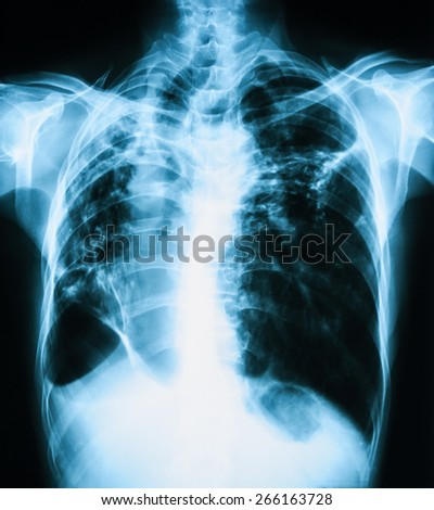 Chest X-ray image, PA upright view, show Pulmonary Tuberculosis (TB)