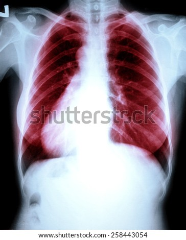Chest x-ray lung disease - stock photo