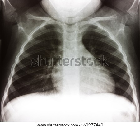 Chest X-ray of child