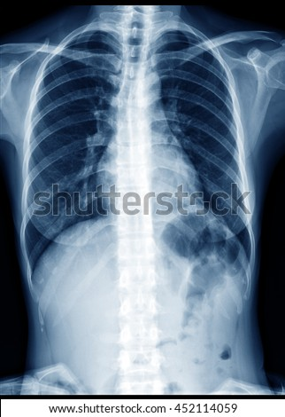 Chest Xray Normal Healthy Woman Show Stock Photo Royalty Free