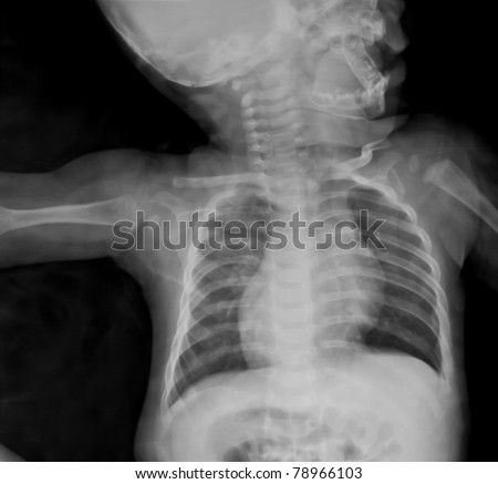 Chest x-ray of young boy.