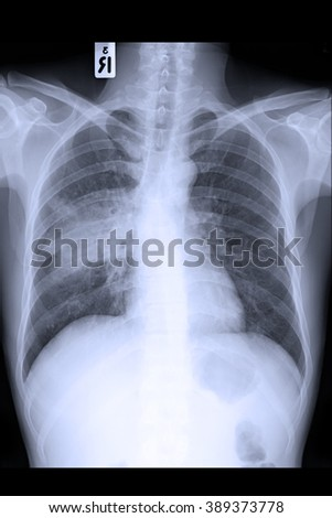 Chest x-ray PA upright show interstitial infiltration right lung due to mycobacterium tuberculosis infection (Pulmonary tuberculosis)  - stock photo