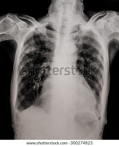 Chest X-ray showing infiltrate of lung. Pneumonia.