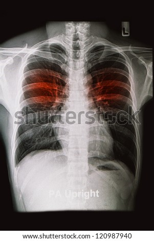 chest X-rays image show lungs and pulmonary disorders - stock photo