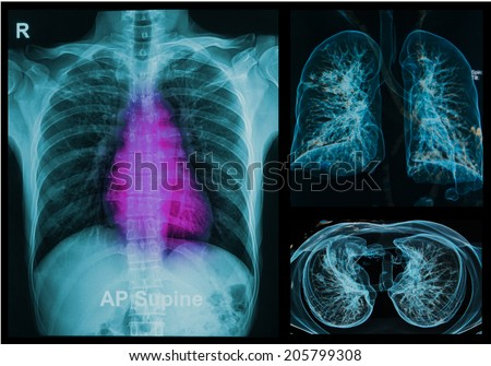 Chest X-rays under 3d image ,lungs 3d image - stock photo