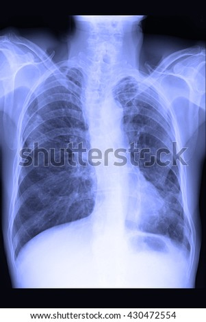 chest xray ; infiltration left lung - stock photo