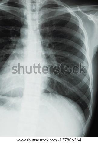 Chest xray scan - stock photo