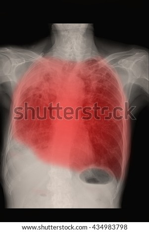 chest xray : show infiltration both lung : TB lung - stock photo