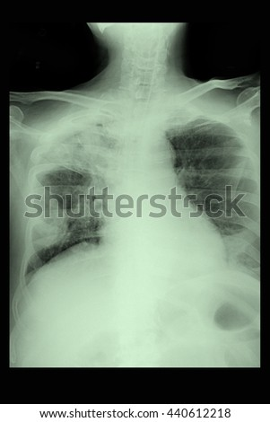 chest xray : show infiltration Rt. lung : cardiomegaly :  - stock photo