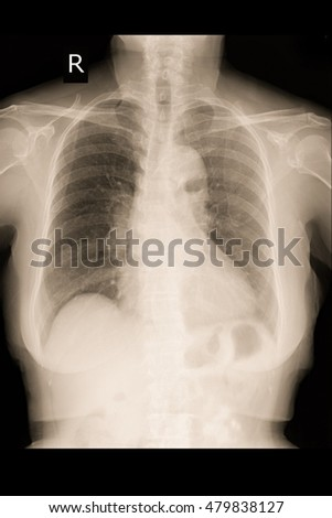 chest xray woman