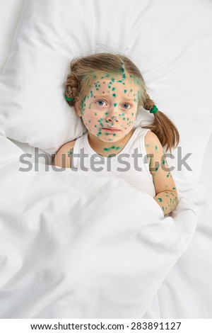 child has the virus on skin, white background