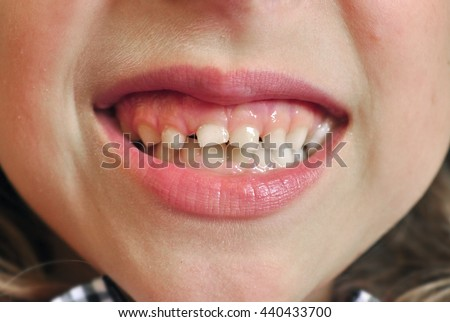 Child teeth grin dental closeup - stock photo