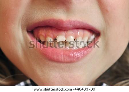 Child teeth grin dental closeup - stock photo