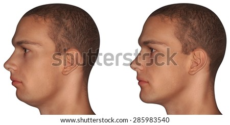 chin implant diagram jaw stock photos, images, & pictures | shutterstock  #13