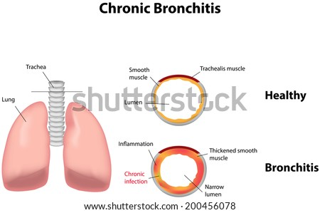 symptoms causes and prevention of bronchitis First, we have acute bronchitis, which is typically caused by viruses usually the same viruses that cause colds and flu secondly, we have chronic bronchitis, which is a type of chronic obstructive pulmonary disorder (copd).