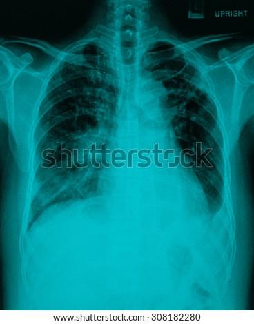 Chronic bronchitis, emphysema old pulmonary tuberculosis - stock photo