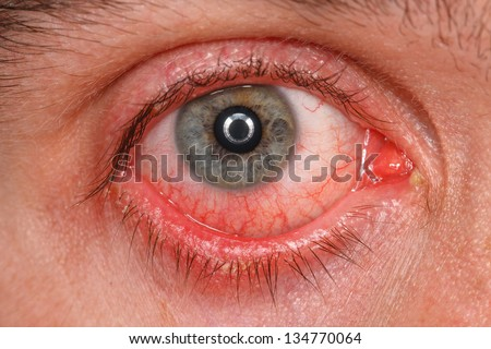 Chronic conjunctivitis eye with a red iris and pus close-up. - stock photo