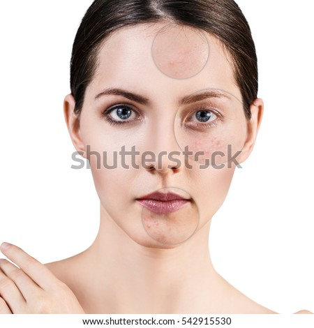 Circles shows problem skin of young girl