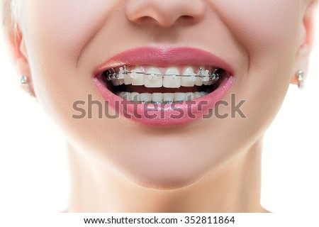Braces smile stock images royalty free images vectors for Bagues dentaires interieur