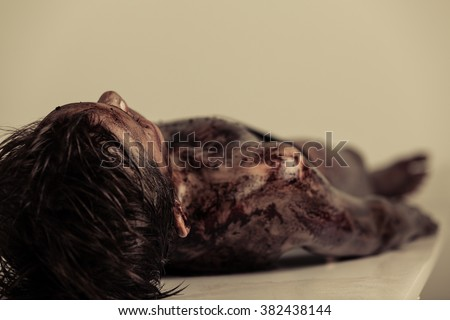 Close up Burnt Body of a Dead Young Boy Lying on the Table in Morgue, Emphasizing Head and Shoulder. - stock photo
