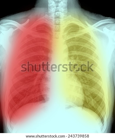 Close up detail of an x-ray of lungs - stock photo