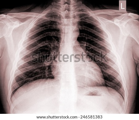 Close up detail of an x-ray of lungs