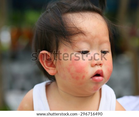 Close-up face baby rashes, dermatitis, which is full of it, but still good. - stock photo