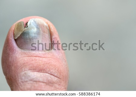 Toenail Stock Images Royalty Free Images Amp Vectors